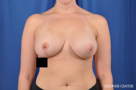 Complex Breast Augmentation: Patient 34 - After Image 1