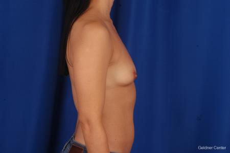 Breast Augmentation Hinsdale, Chicago 2299 - Before Image 2