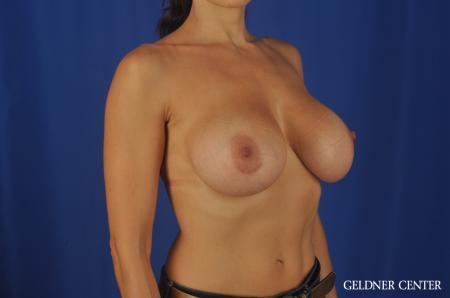 Chicago Breast Augmentation 5475 -  After Image 2