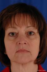 Facelift: Patient 1 - Before Image