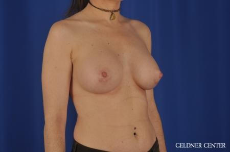 Breast Augmentation Hinsdale, Chicago 5579 -  After Image 2