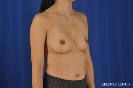 Chicago Breast Augmentation 8818 - Before Image 3