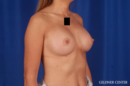 Breast Augmentation: Patient 173 - After Image 2