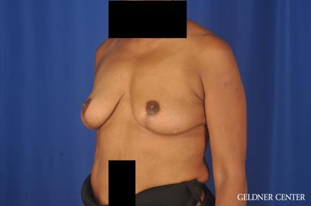 Breast Lift: Patient 22 - After Image 4