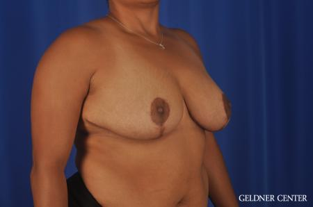 Breast Reduction Lake Shore Dr, Chicago 9099 -  After 2
