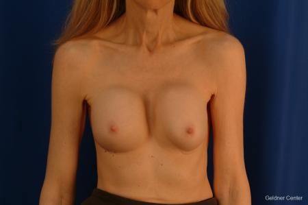 Complex Breast Augmentation Hinsdale, Chicago 2398 - Before Image 1