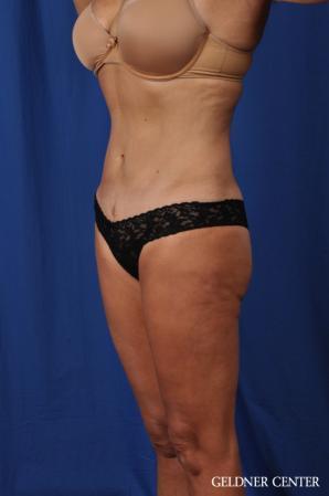 Liposuction: Patient 43 - After 5