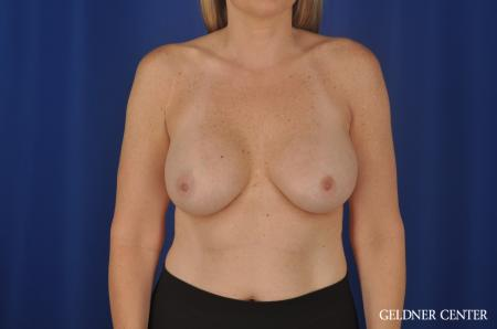 Breast Augmentation Streeterville, Chicago 8749 - Before Image 1