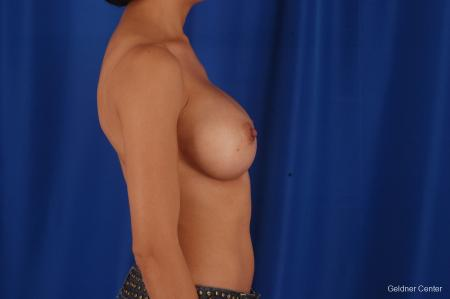 Chicago Breast Augmentation 2339 -  After Image 2