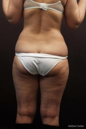 Liposuction: Patient 9 - Before and After Image 5