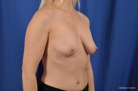 Breast Lift: Patient 19 - Before Image 3