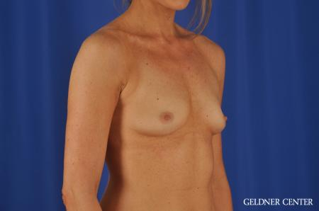 Chicago Breast Augmentation 8745 - Before Image 3