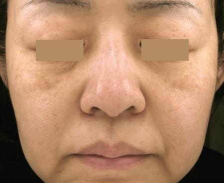 Laser: Patient 4 - After Image