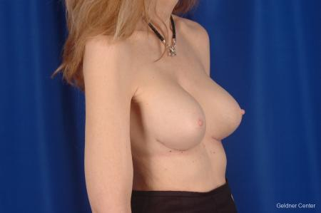 Complex Breast Augmentation Hinsdale, Chicago 2398 -  After Image 3