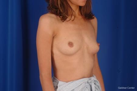 Breast Augmentation Lake Shore Dr, Chicago 2295 - Before Image 3