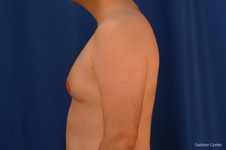 Gynecomastia: Patient 4 - Before and After Image 4