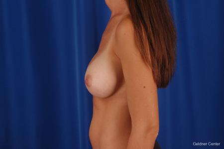 Chicago Breast Augmentation 2294 -  After Image 4
