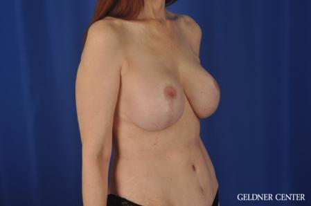 Complex Breast Augmentation: Patient 37 - After Image 2