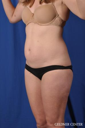 Liposuction: Patient 48 - Before and After 5