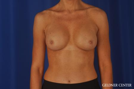 Chicago Breast Augmentation 8745 -  After Image 1