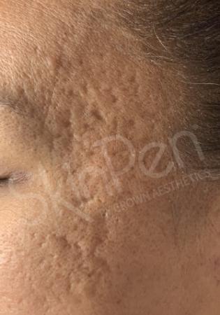SkinPen®: Patient 2 - Before 1