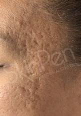 SkinPen®: Patient 2 - Before