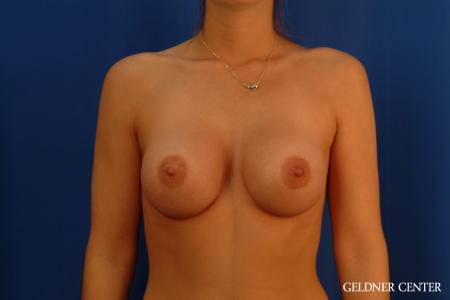 Breast Augmentation: Patient 181 - After Image 1