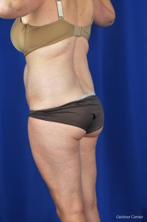 Tummy Tuck: Patient 7 - Before and After Image 5