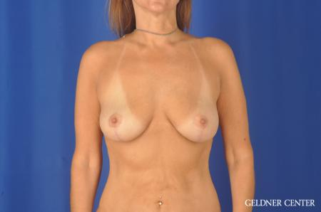 Chicago Breast Lift 11866 -  After Image 1