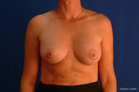 Breast Augmentation Streeterville, Chicago 2508 -  After Image 1