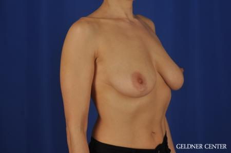 Chicago Breast Augmentation 5475 - Before Image 2
