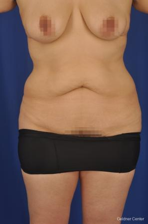 Mommy Makeover: Patient 5 - Before Image