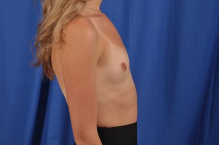 Breast Augmentation: Patient 82 - Before Image 2
