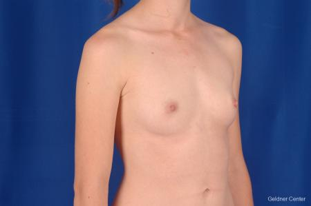 Chicago Breast Augmentation 2304 - Before Image 3