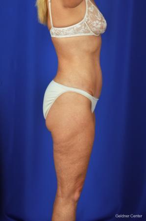Liposuction: Patient 4 - After Image 3