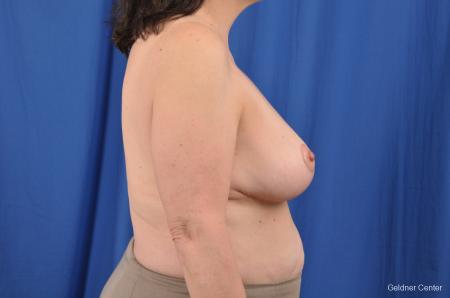 Breast Reduction: Patient 29 - After Image 3