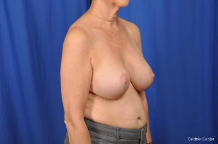 Breast Lift Hinsdale, Chicago 2058 -  After Image 3
