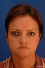Rhinoplasty: Patient 2 - Before Image