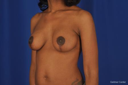 Breast Lift Streeterville, Chicago 2379 -  After Image 3
