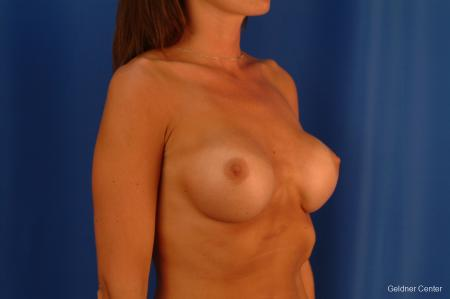 Complex Breast Augmentation Streeterville, Chicago 2620 - Before Image 3