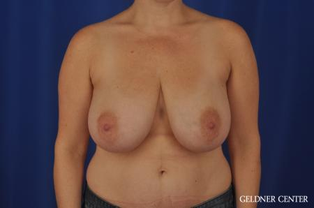 Breast Reduction Hinsdale, 4287 - Before Image 1