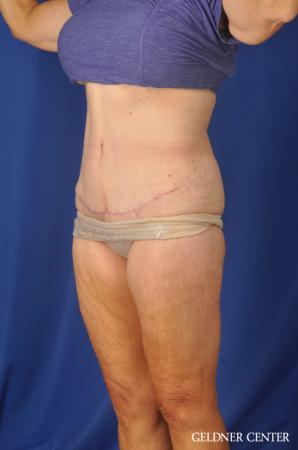Liposuction: Patient 34 - After Image 5