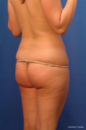 Liposuction: Patient 13 - Before Image 4