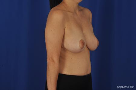 Chicago Breast Reduction 2068 - Before Image 2