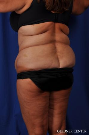 Liposuction: Patient 24 - Before Image 4