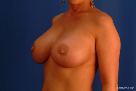 Breast Augmentation Hinsdale, Chicago 2427 -  After Image 4