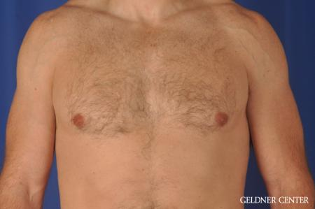 Gynecomastia: Patient 9 - After Image