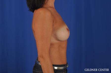 Breast Lift: Patient 48 - After 3