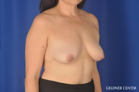 Chicago Breast Lift 11857 - Before Image 3
