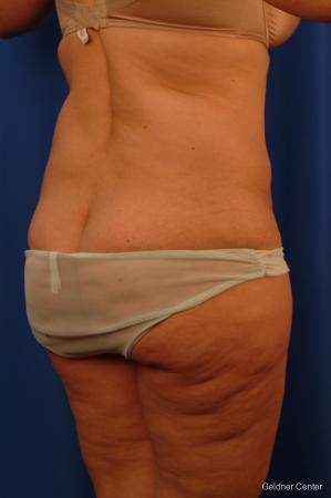 Lipoabdominoplasty: Patient 3 - Before Image 3